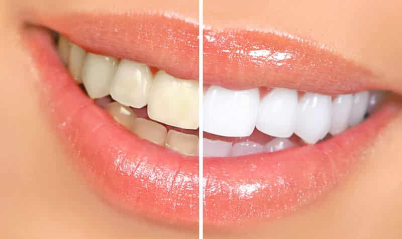 Избелване на зъби (преди-след)