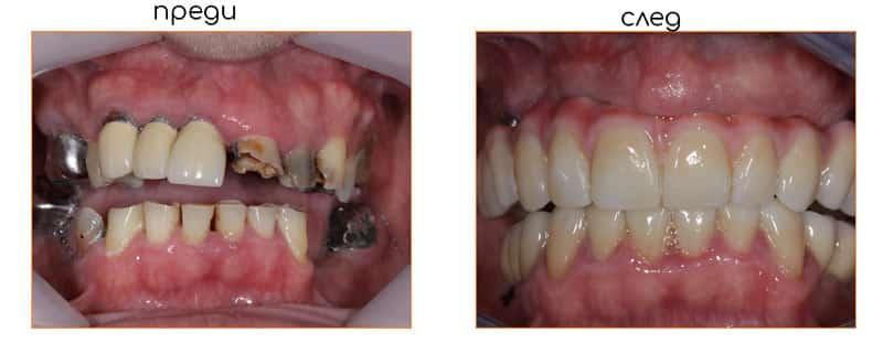 TeethXpress преди-след