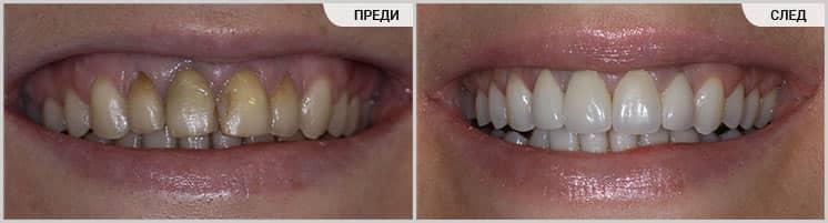 Порцеланови фасети (преди-след)