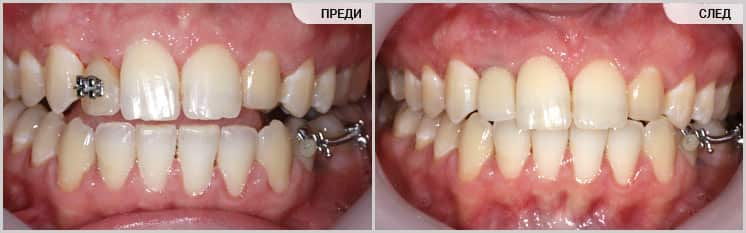 Възстановяване на липсващ зъб с имплант и корона