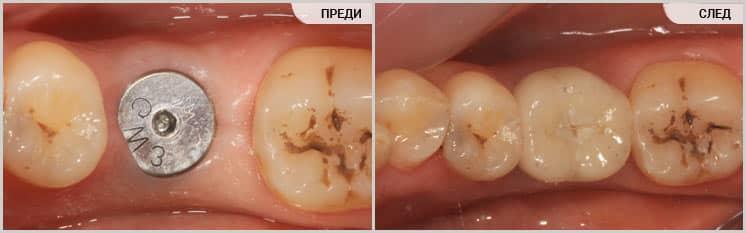 Възстановяване на липсващ зъб с имплант при ортодонтско лечение