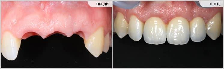Възстановяване на фрактурирани зъби с импланти и мост, Confident Дентална клиника