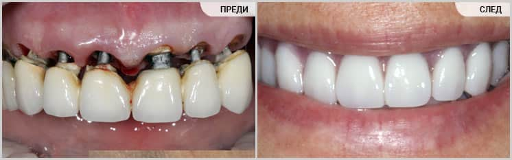 Лечение по системата TeethXpress