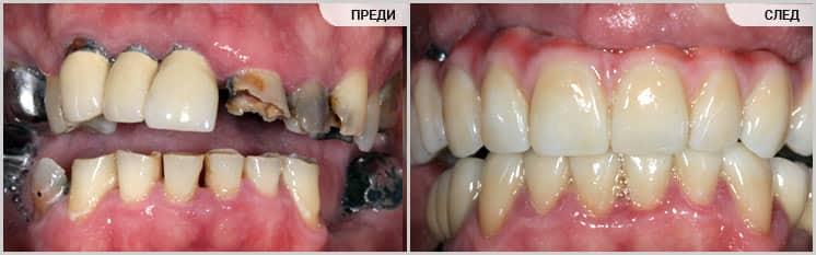 Възстановяване на горна челюст с импланти и мостове