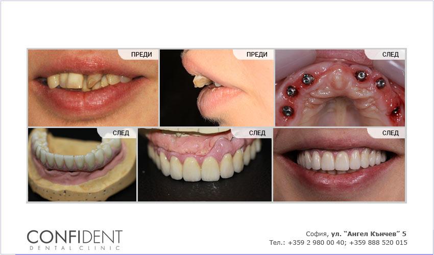 Тотално възстановяване на горна и долна челюст по системата Teeth Express