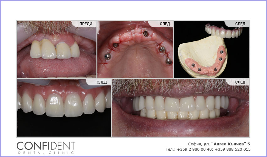 Тотално възстановяване на горна челюст по системата Teeth Express, предварителни конструкции