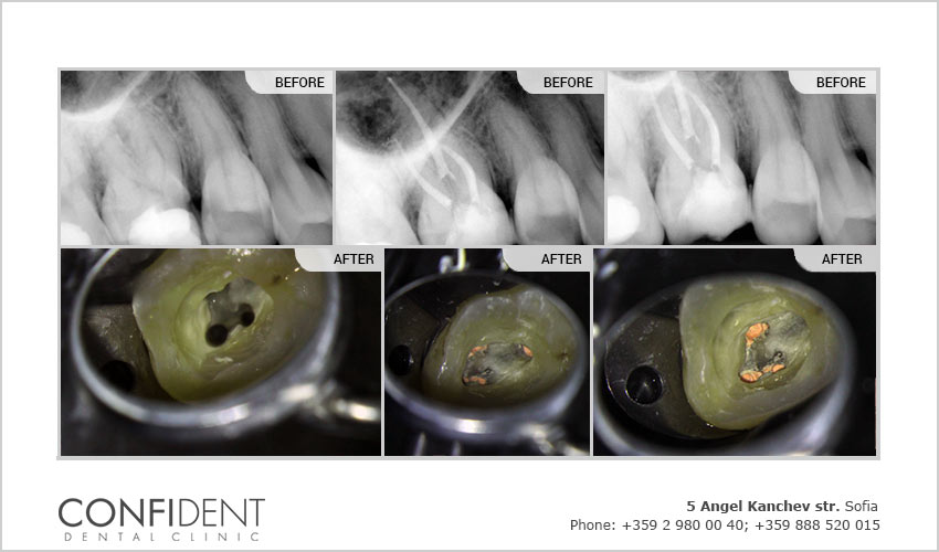 Rooth canal treatment of deep fractured teeth