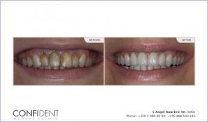 Aesthetic restoration with porcelain veneers and crowns