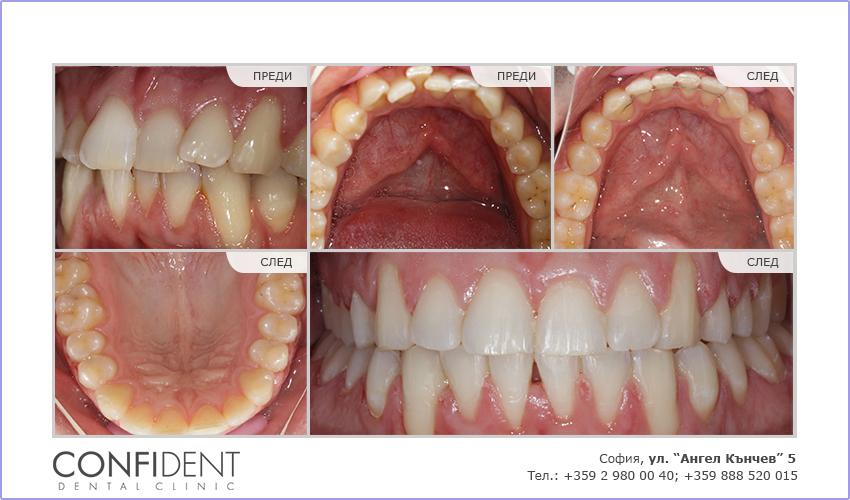 Ортодонтско лечение с брекети Damon Clear - една година и десет месеца