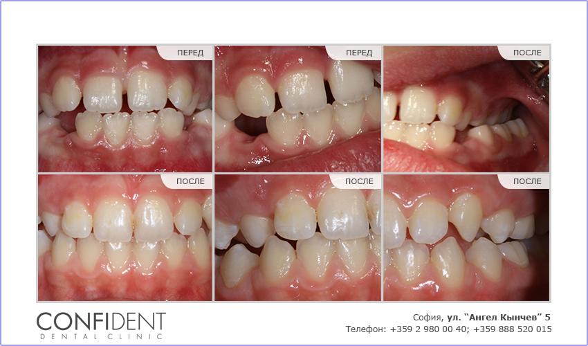 Ортодонтическое лечение с переносными приборами - два года