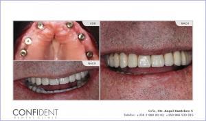 Vollständige Wiederherstellung mit Implantaten