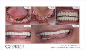 Vollständige Wiederherstellung mit Implantaten und Kronen