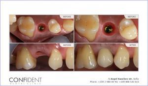 Crown on implant