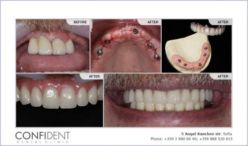 Teeth Express System, Upper jaw, Temporary bridge, first stage