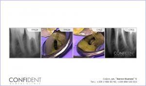 Премахване на счупен инструмент и лечение на хроничен периодонтит