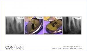 Die Behandlung der akuten Pulpitis Zahn mit fünf Kanälen