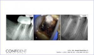Entfernen abgebrochener Instrument und die Behandlung von chronischer Parodontitis