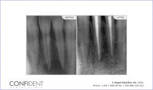 Treatment of chronic periodontitis large bone destruction