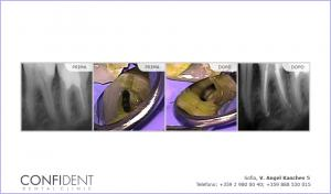 Trattamento di pulpite acuta dente con cinque canali