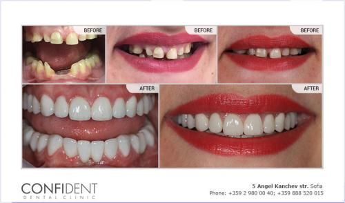Aesthetic recovery with zirconium crowns