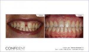 Ортодонтскo лечение с брекети Damon Q - една година и четири месеца