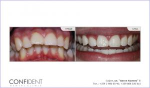 Ортодонтско лечение с брекети Damon Q - една година и девет месеца