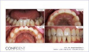 Kieferorthopädische Behandlung mit Zahnspangen Damon Q - ein Jahr und sechs Monate