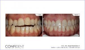 Kieferorthopädische Behandlung mit Zahnspangen Damon Q - ein Jahr und acht Monate
