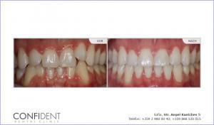 Kieferorthopädische Behandlung mit Zahnspangen Damon Clear einem Jahr und 2 Monate
