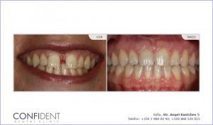 Kieferorthopädische Behandlung mit Zahnspangen Damon Q - ein Jahr und vier Monate