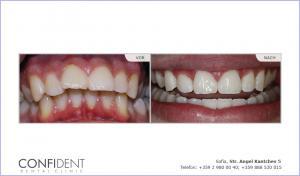 Kieferorthopädische Behandlung mit Zahnspangen Damon Q - 1 Jahr und neun Monate