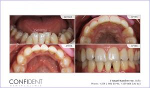 Orthodontic treatment with braces Damon Q - one year and six months