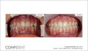 Orthodontic treatment with braces Damon Clear - one years and ten months