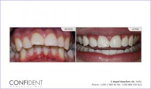 Orthodontic treatment with braces Damon Q - one years and nine months