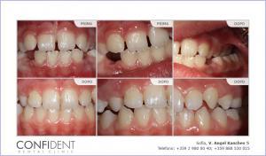 Trattamento ortodontico con apparecchi rimovibili - di due anni