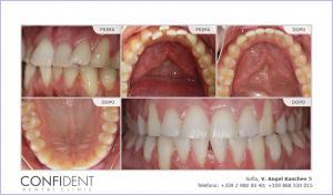 Trattamento ortodontico con bretelle Damon Clear - uno anno e dieci mesi