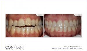 Trattamento ortodontico con bretelle Damon Q - un anno e otto mesi