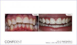 Trattamento ortodontico con bretelle Damon Q - un anno e quattro mesi