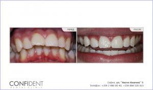 Ортодонтическое лечение с брекетами Damon Q - одна лет и девять месяцев